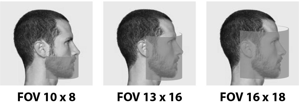 FOV_Hyperion_X9